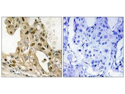Phospho-p53 (Thr387) Polyclonal Antibody