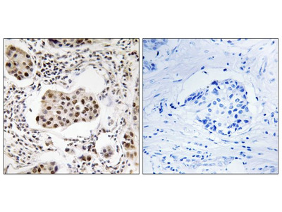 PPP1R11 Antibody