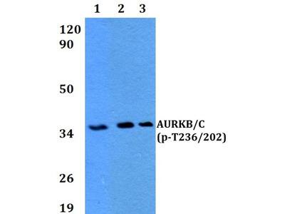 Phospho-Aurora B/C (Thr236, Thr202) Antibody