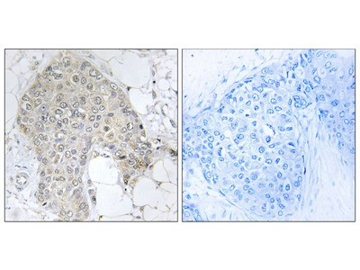 PPP1R2 Antibody