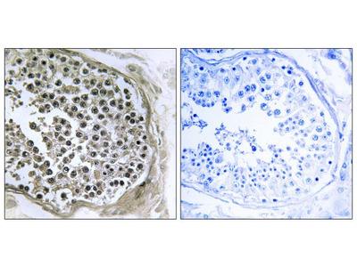 R3HCC1L Polyclonal Antibody