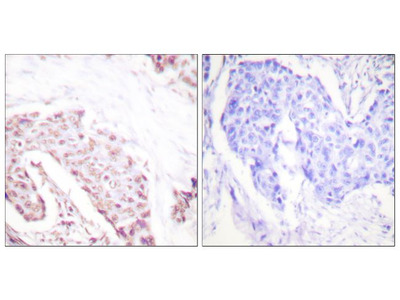 Phospho-AKT1 (Ser124) Polyclonal Antibody