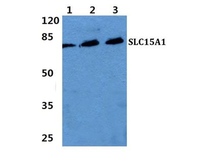 SLC15A1 Polyclonal Antibody