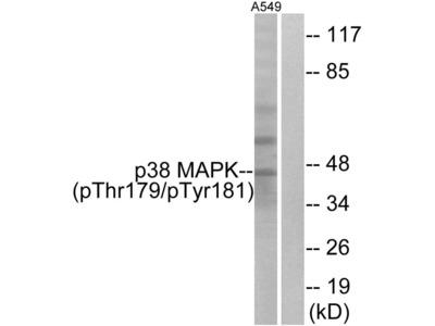 Phospho-p38 MAPK alpha (Thr179, Tyr181) Polyclonal Antibody