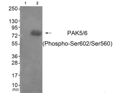 Phospho-PAK5/PAK6 (Ser602, Ser560) Antibody