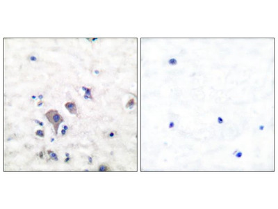 GluR2/GluR3 Polyclonal Antibody