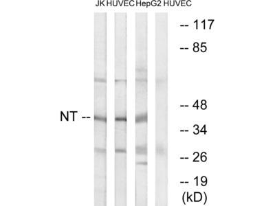 NTM Polyclonal Antibody