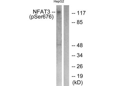 Phospho-NFATC4 (Ser676) Polyclonal Antibody