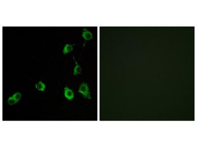 OR5B12 Polyclonal Antibody