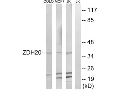 ZDHHC20 Polyclonal Antibody