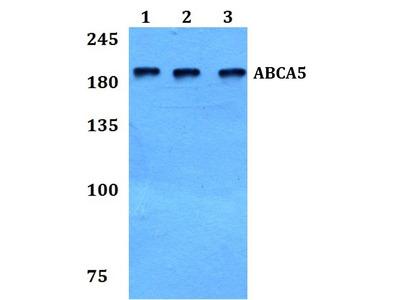 ABCA5 Polyclonal Antibody