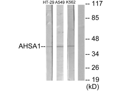 COL9A2 Polyclonal Antibody