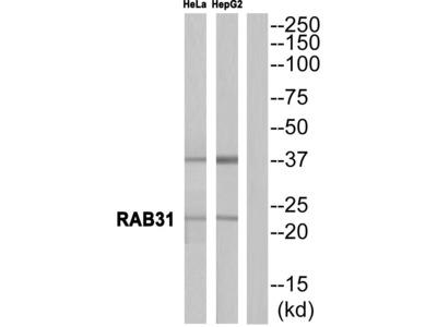 RAB31 Polyclonal Antibody