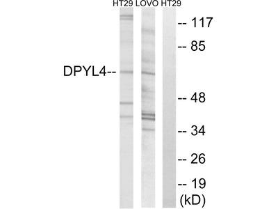 CRMP3 Polyclonal Antibody