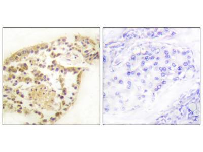 Phospho-Vimentin (Ser83) Polyclonal Antibody