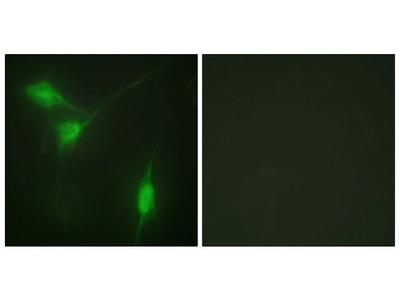 Phospho-AKT1 (Ser246) Polyclonal Antibody