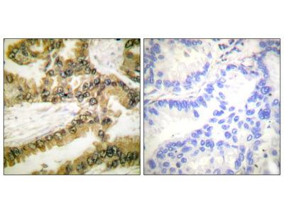 Phospho-AKT1 (Thr450) Polyclonal Antibody