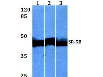 HTR5B Polyclonal Antibody
