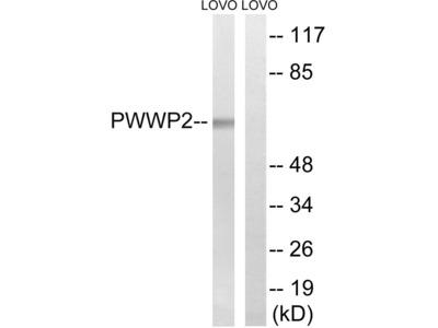 PWWP2B Polyclonal Antibody