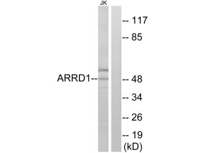 ARRDC1 Polyclonal Antibody