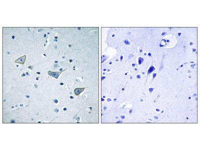 GPR158 Polyclonal Antibody