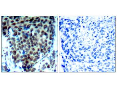 Phospho-p38 MAPK alpha (Thr180) Polyclonal Antibody