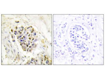 TRAP220 Polyclonal Antibody
