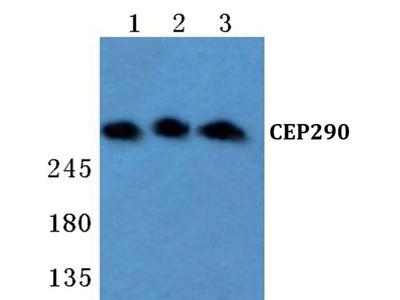 CEP290 Polyclonal Antibody