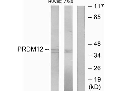 PRDM12 Polyclonal Antibody