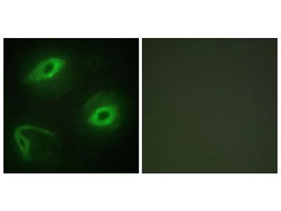 LATH Polyclonal Antibody