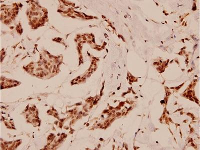 C/EBP epsilon Polyclonal Antibody