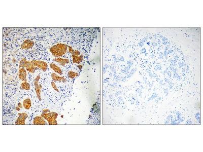 CMTM4 Polyclonal Antibody