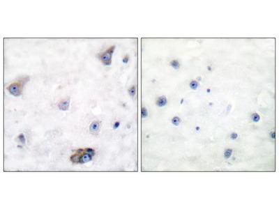 Phospho-GABRB1 (Ser434) Polyclonal Antibody