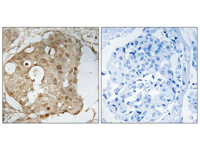 Phospho-p53 (Ser366) Polyclonal Antibody