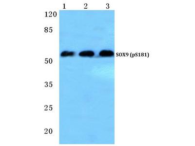 Phospho-SOX9 (Ser181) Polyclonal Antibody