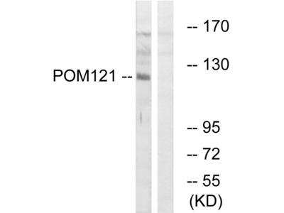POM121 Polyclonal Antibody