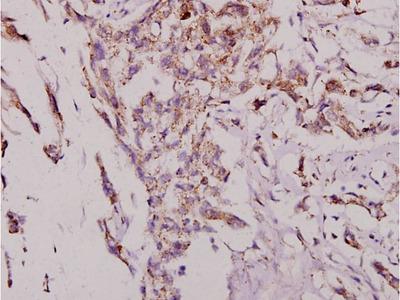 JNK1/JNK2/JNK3 Polyclonal Antibody