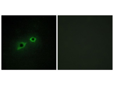 TMPRSS15 Polyclonal Antibody