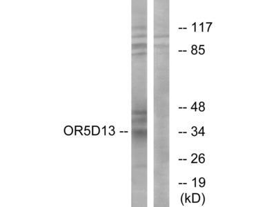 OR5D13 Polyclonal Antibody