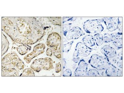 APOBEC3D/APOBEC3F Polyclonal Antibody