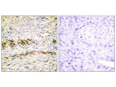 Phospho-AKT1 (Tyr474) Polyclonal Antibody