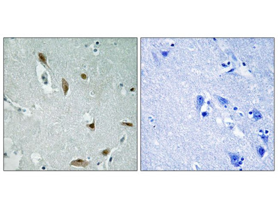 Phospho-AKT1/AKT3 (Tyr437, Tyr434) Polyclonal Antibody