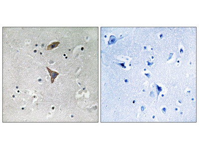 KCNT1 Polyclonal Antibody