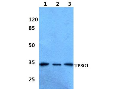 TPSG1 Polyclonal Antibody