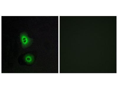 OR4C16 Polyclonal Antibody