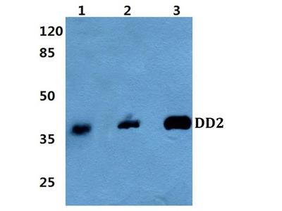 AKR1C2 Polyclonal Antibody