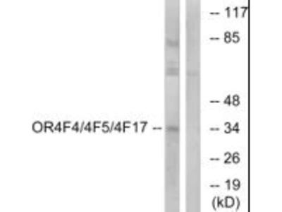 OR4F4/OR4F5/OR4F17 Polyclonal Antibody