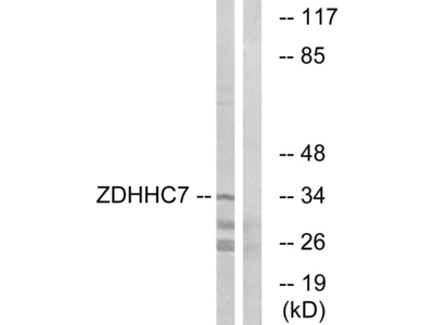ZDHHC7 Polyclonal Antibody