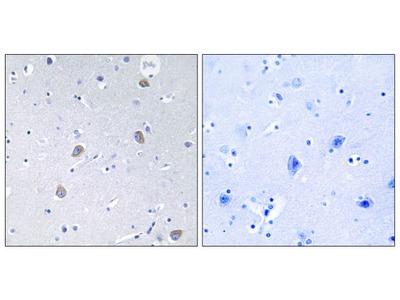 Phospho-p70 S6 Kinase (Ser371) Polyclonal Antibody