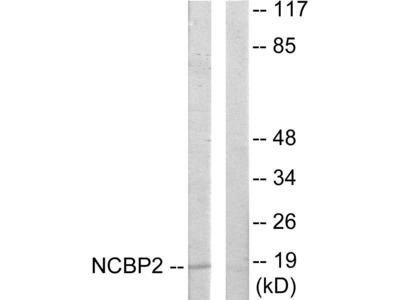 NCBP2 Polyclonal Antibody